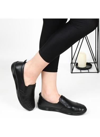 Burç 4132 Orto Pedik Deri Günlük Bayan Ayakkabı Siyah